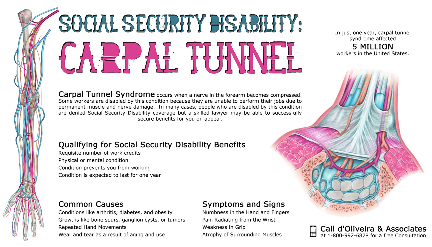 Social Security Disability with Carpal Tunnel Syndrome Infographic