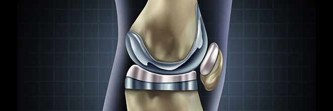 DePuy Attune Knee Replacement System